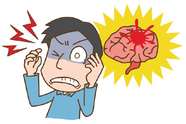 脳卒中発症のイメージ